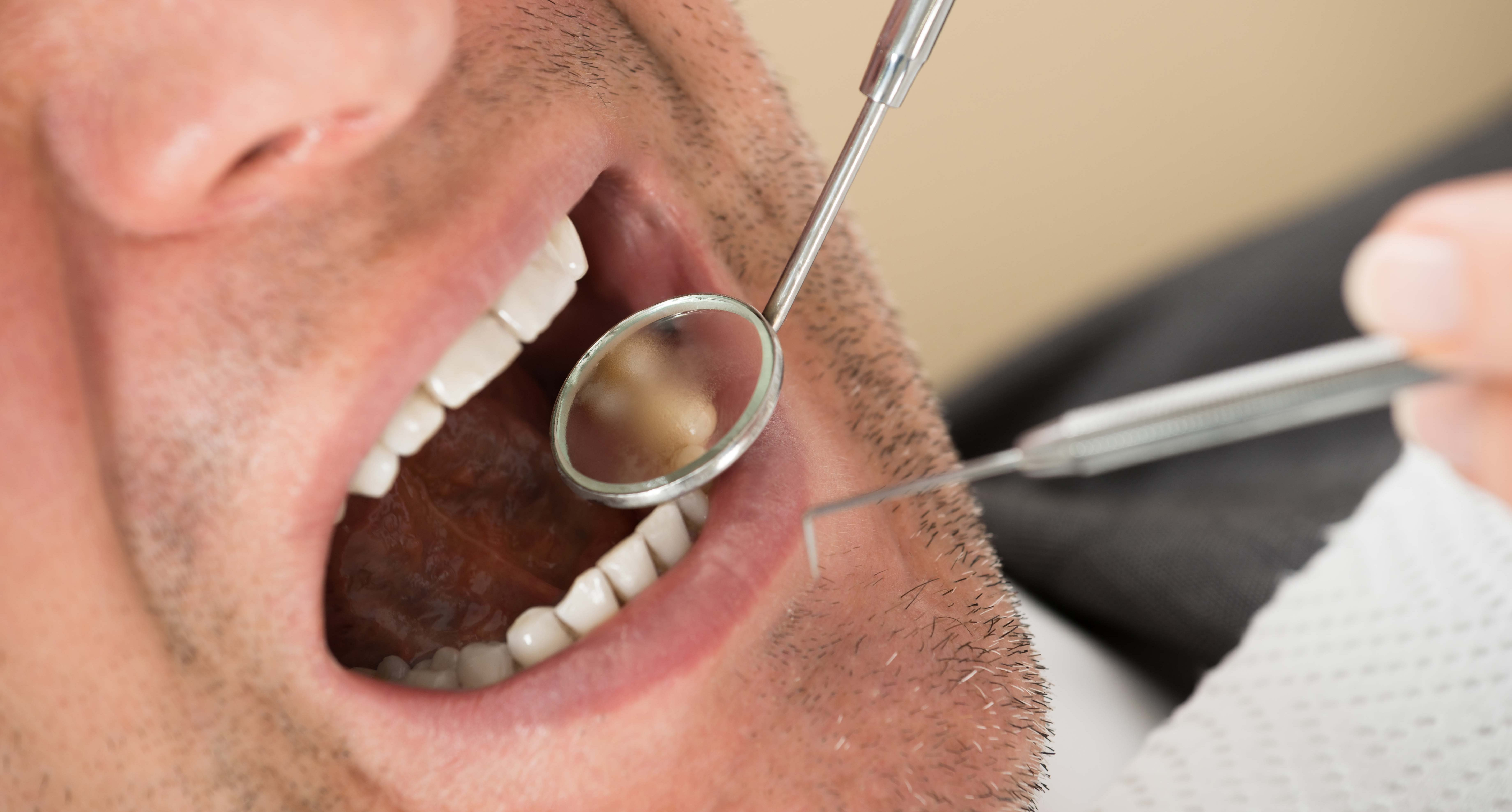 Half of adults in the UK visiting an NHS dentist